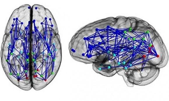 Men-women-brains-008